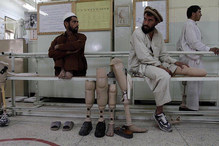 Человек ждет, чтобы получить новый протез ноги в больнице в Джелалабаде, Афганистан