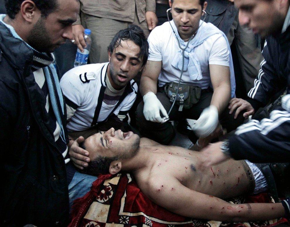 Раненный полицейской картечью демонстрант
