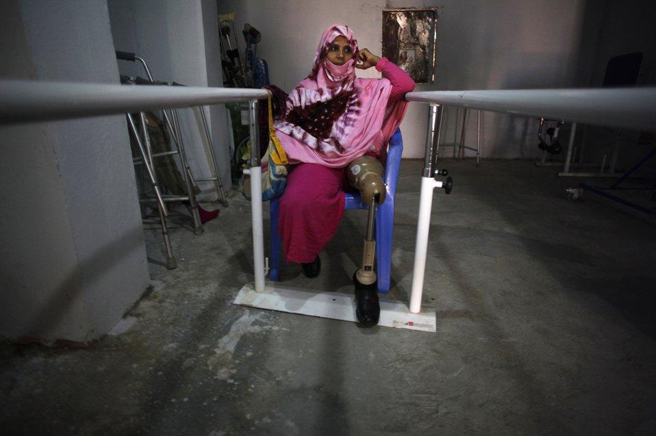 Фатима Махамуд потеряла ногу, наступив на мину