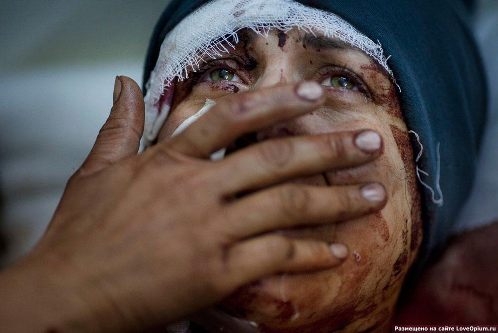 Раненая женщина во время боев в Сирии