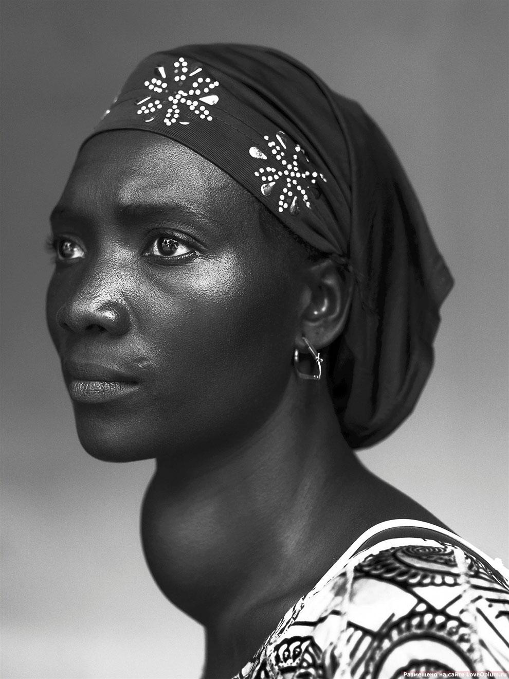 Портрет женщины с увеличенной щитовидной железой, Конакри, Гвинея, 17 октября 2012