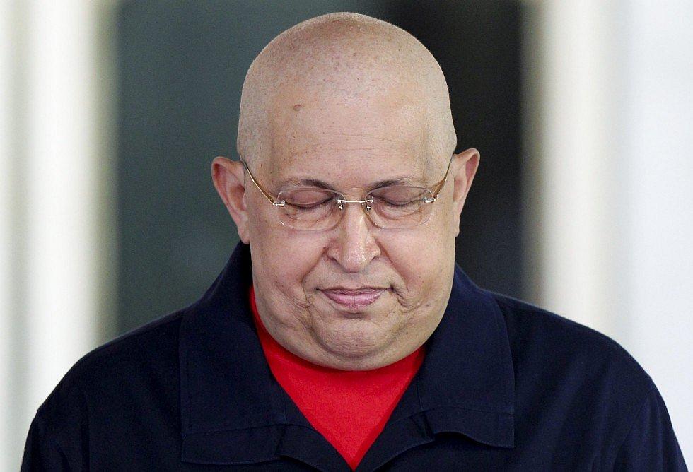 Борьба с раком. Уго Чавес после химиотерапии