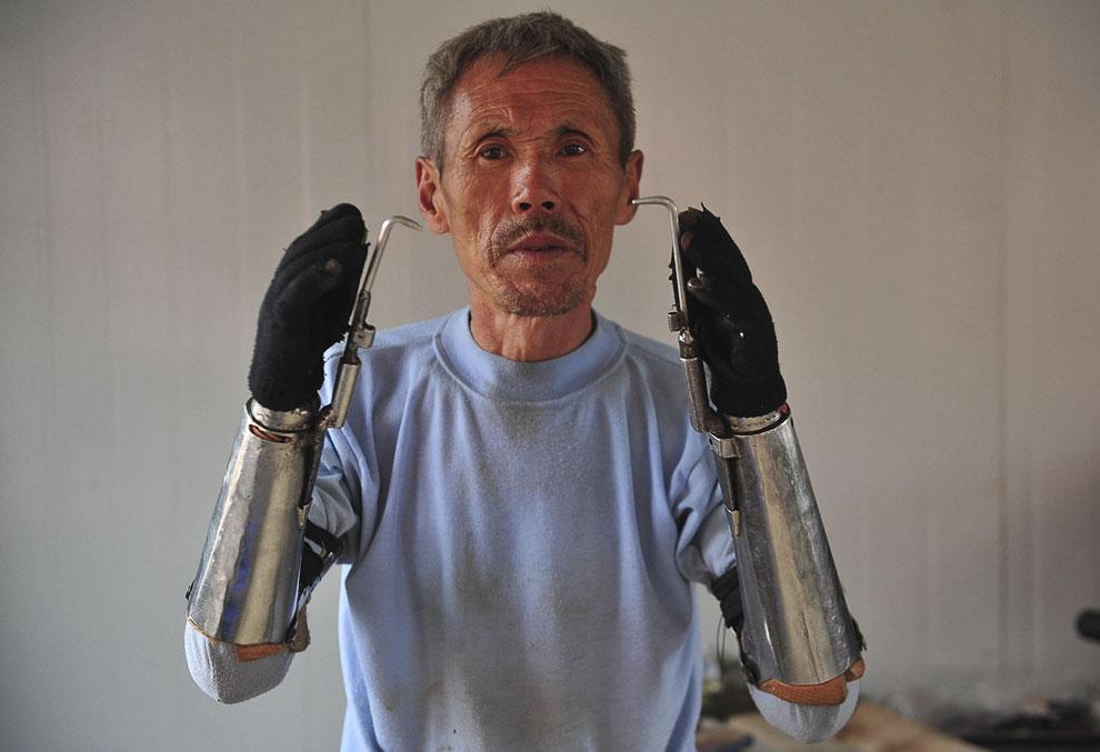 Этот фермер из Китая потерял свои руки во время рыбалки с динамитом 32 года назад