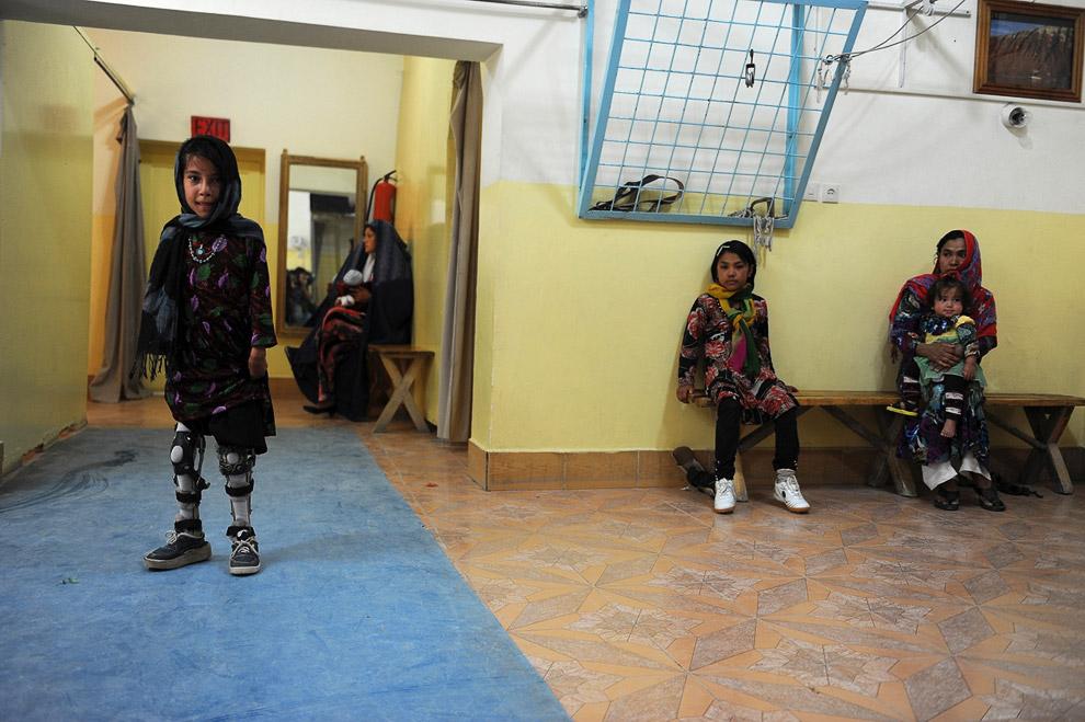 Дети войны. Девочка на протезах в больнице в Мазари-Шариф