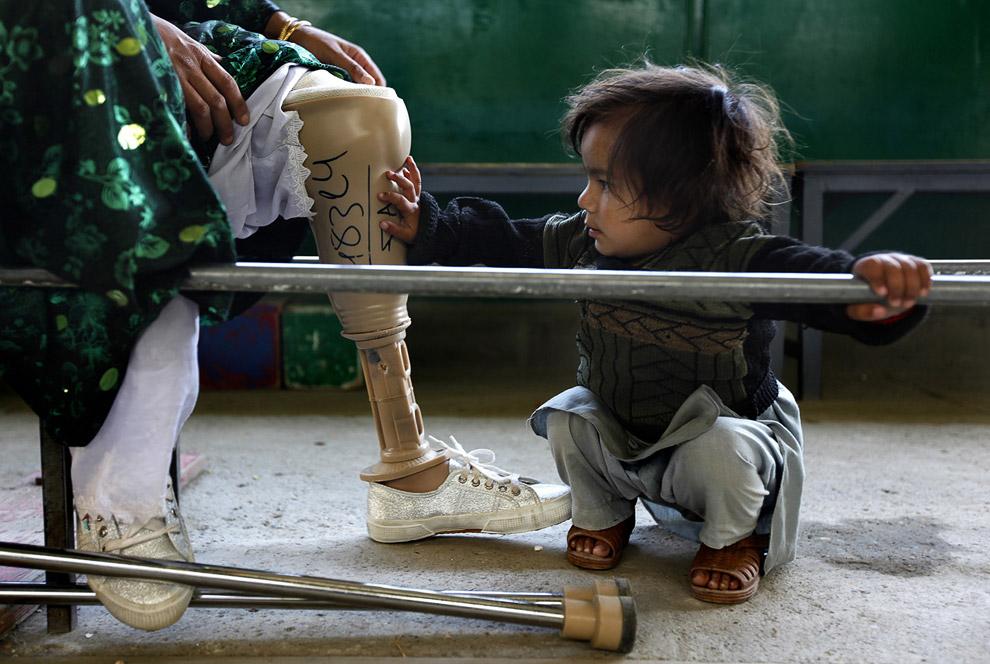 Жертвы противопехотных мин. Дочь и мама с протезом