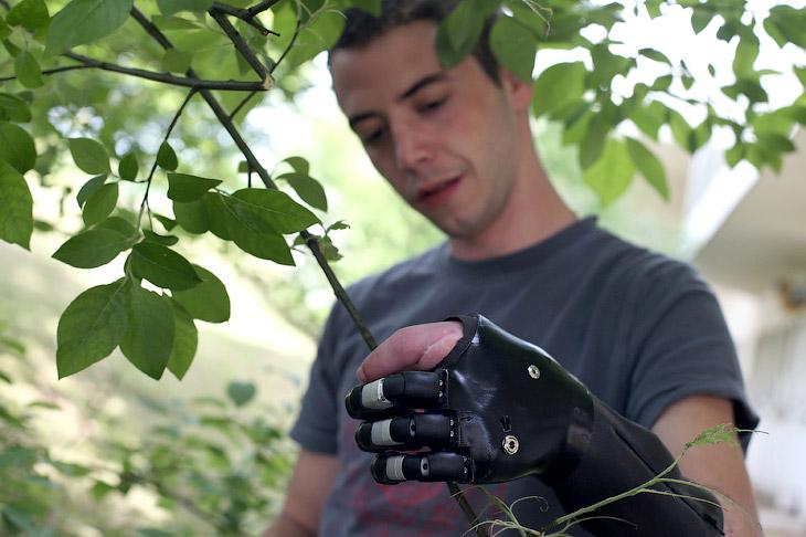 Бионическая рука-протез у французского пациента