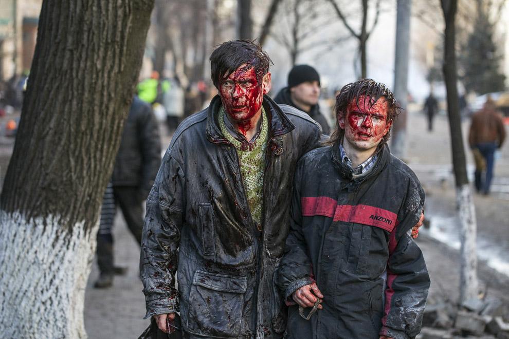 Раненые после столкновений с полицией в центре Киева
