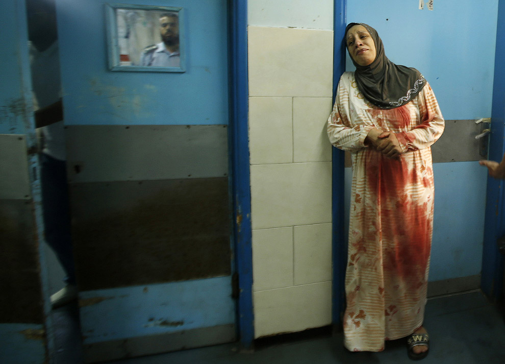 Палестинка в больнице в городе Газа