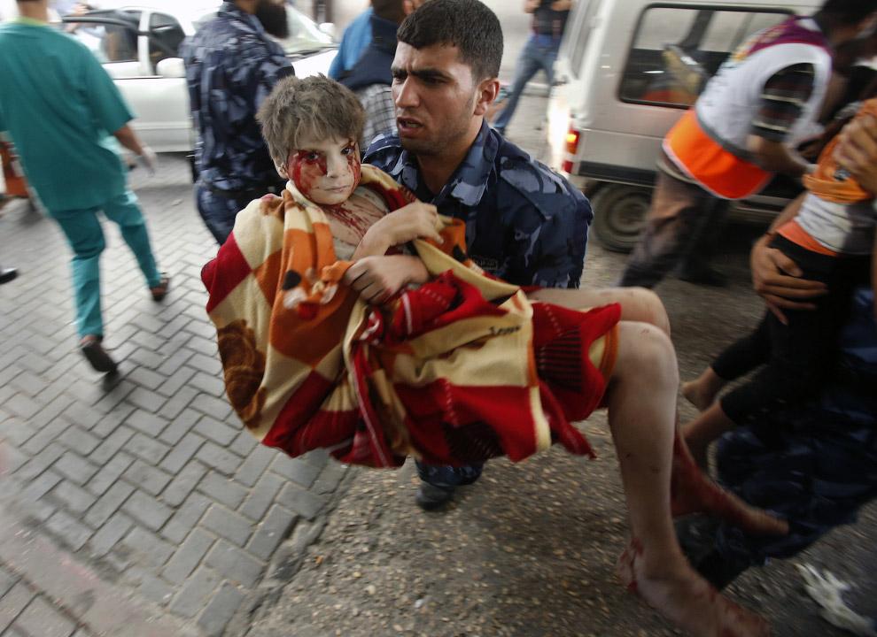 Раненый мальчик в городе Газа