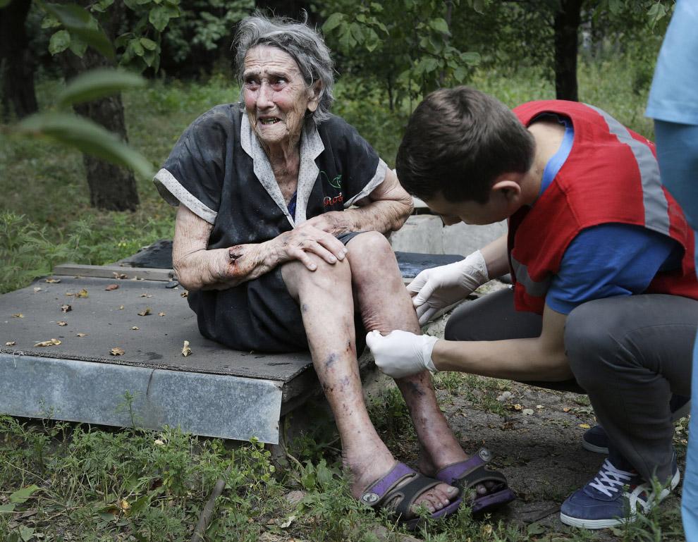 Раненая после обстрела Донецка