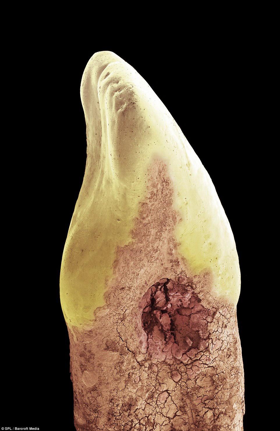 Разрушение зуба-резца