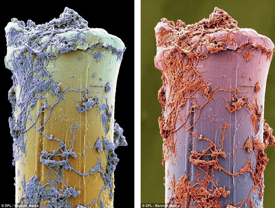 Так выглядят зубные щетки после чистки зубов. Это щетинки, на которых находится зубной налет