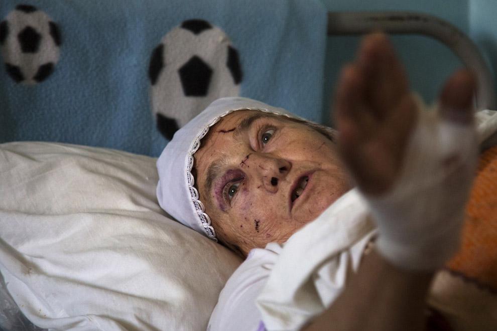 72-летняя раненая в больнице, Донецк