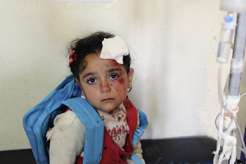 Раненая девочка в полевом госпитале