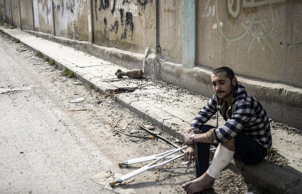 Раненый курд из отряда народной самообороны и снаряд, Кобани, Сирия