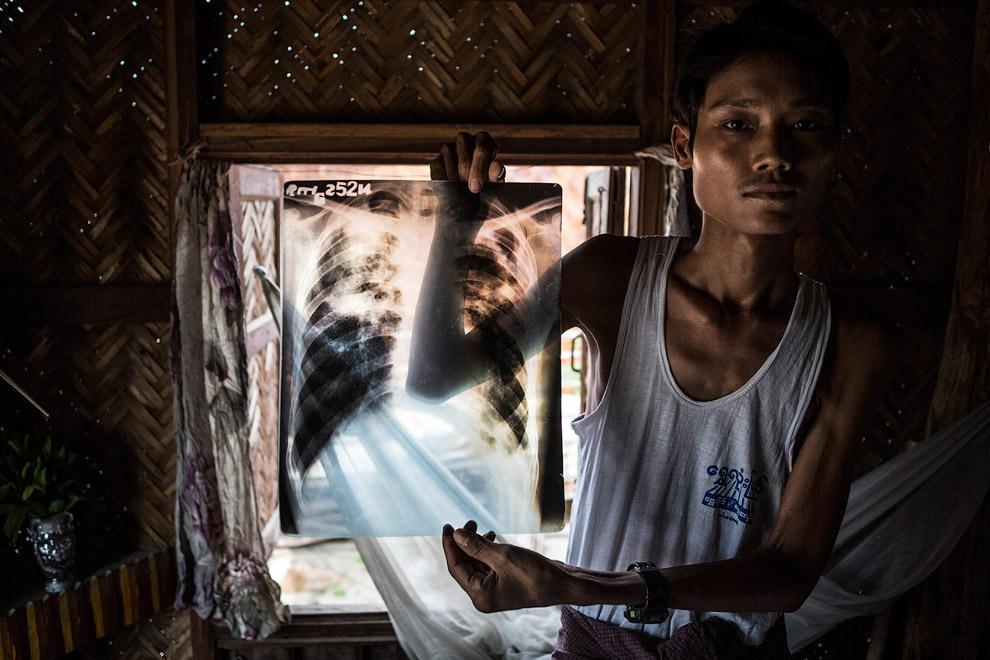 Рентгеновский снимок легких шахтера из Мьянмы