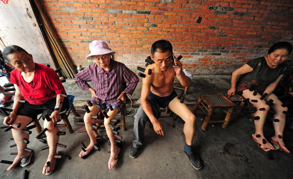 Особенности традиционной китайской медицины