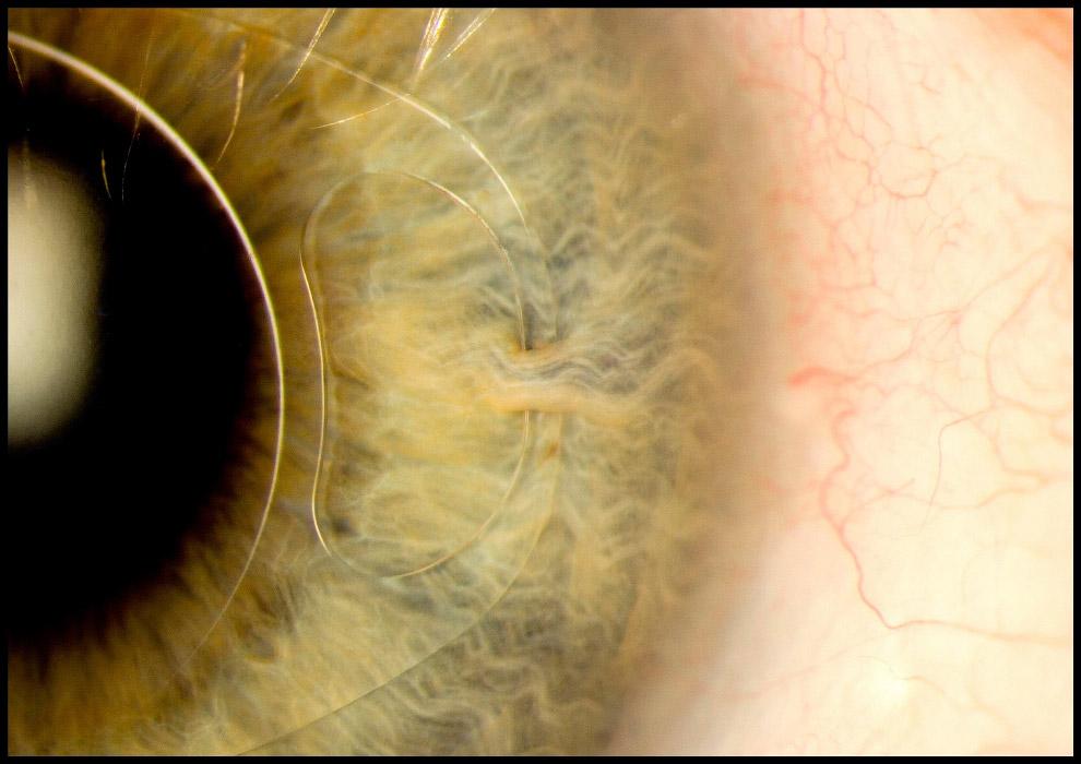 Интраокулярная линза в глазу