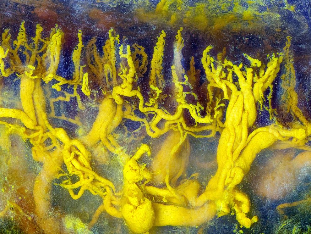Кровеносные сосуды человеческого языка
