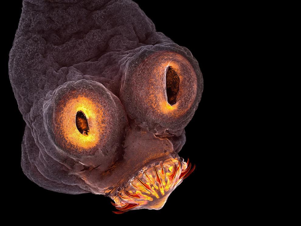 Голова ленточного червя. 200-кратное увеличение