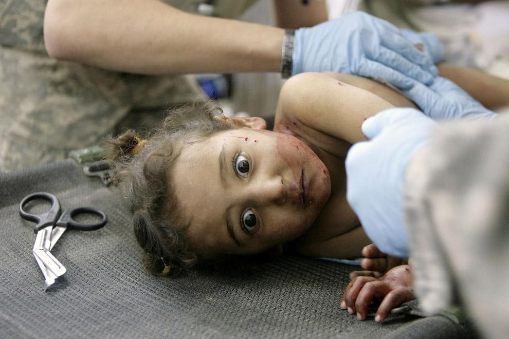 Раненая иракская девочка