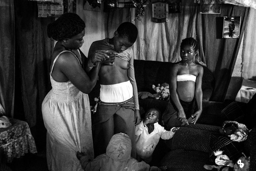 Массаж груди, как метод предотвращения роста груди у девушек, чтобы избежать последующего насилия, Камерун