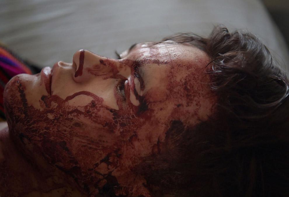 Раненые во время теракта в Кабуле