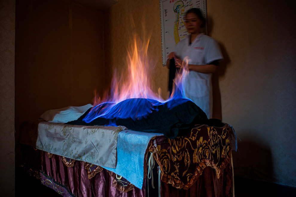 Local therapy with fire in Chengdu, China