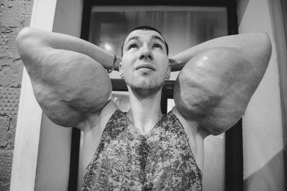 Бигорексия — мужская версия анорексии