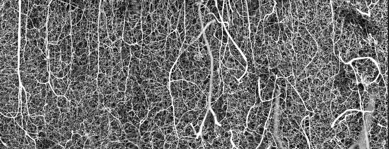 3D-сосудистая сеть мозга взрослой мыши