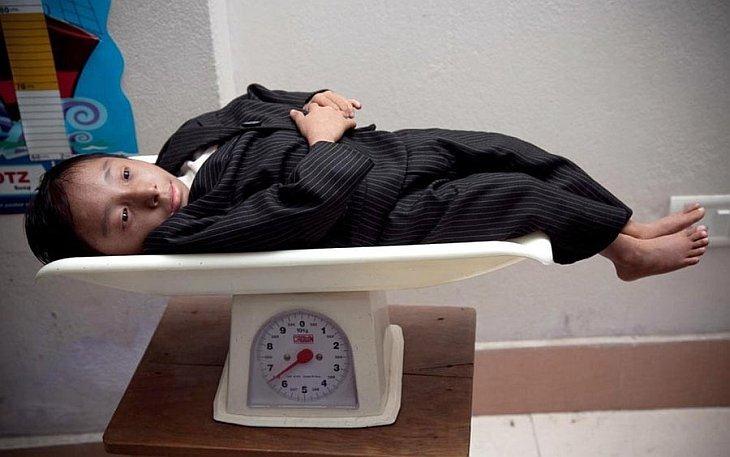 Khagendra Thapa Maga вошел в книгу рекордов как самый короткий человек в мире